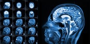 Brain MRI-min
